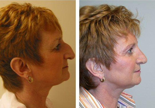 Patient-001b5271255f5e9f5.jpg - Rhinoplasty - Before and After | Fairfax and Manassas VA