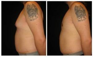 12713b - Gynecomastia Before and After | Fairfax and Manassas VA