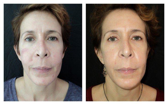 13361 (1) - BBL - Patient 2 - Before & After 3   Fairfax and Manassas, VA