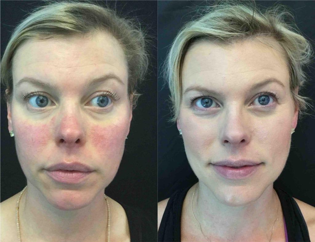 22207 BBL - BBL Photo Rejuvenation - Before And After   Fairfax and Manassas VA