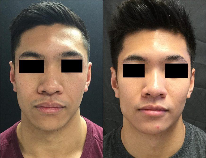 22858-20170331_Front-Draw-non-surgical-chin-augmentation - Non-Surgical Cheek Augmentation - Before And After   Fairfax and Manassas VA