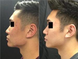 22858-20170331_Side-Draw58deb85ed5eaf-non-surgical-chin-augmentation - Non-Surgical Cheek Augmentation - Before And After | Fairfax and Manassas VA