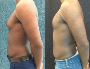 22934 Gynecomastia - Male Breast Reduction - Before And After - Gynecomastia - Fairfax and Manassas VA