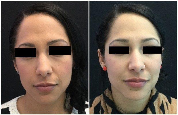 8747aa-voluma - Non-Surgical Cheek Augmentation - Before And After | Fairfax and Manassas VA