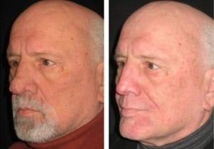 dermabrasion-4 - Dermabrasion - Before and After   Fairfax and Manassas VA