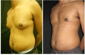 11753b-male-breast-reduction - Male Breast Reduction - Before And After - Gynecomastia - Fairfax and Manassas VA