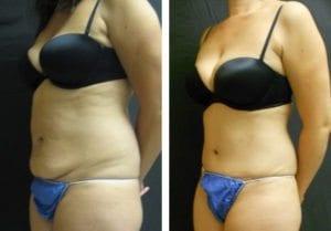 12342-Side-tummy-tuck-abdominoplasty - Tummy Tuck & Abdominoplasty - Before And After - Fairfax and Manassas VA
