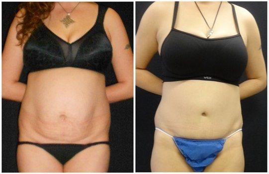 13089a-tummy-tuck-abdominoplasty - Tummy Tuck - Before And After - Abdominoplasty - Fairfax and Manassas VA