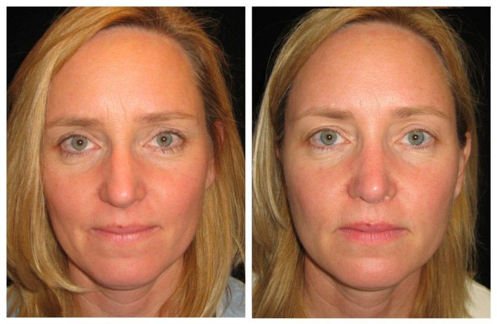 13302a-rhinoplasty-for-women - Rhinoplasty For Women - Before And After | Fairfax and Manassas VA