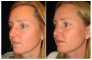 13302b-rhinoplasty-for-women - Rhinoplasty For Women - Before And After | Fairfax and Manassas VA