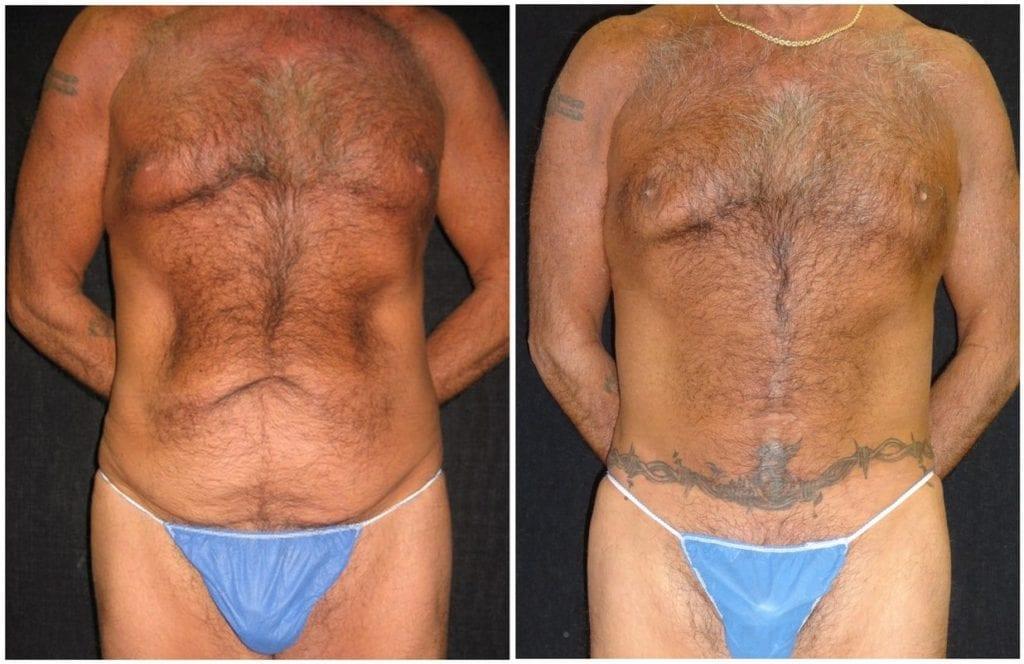 13538a-tummy-tuck-abdominoplasty - Tummy Tuck - Before And After - Abdominoplasty - Fairfax and Manassas VA
