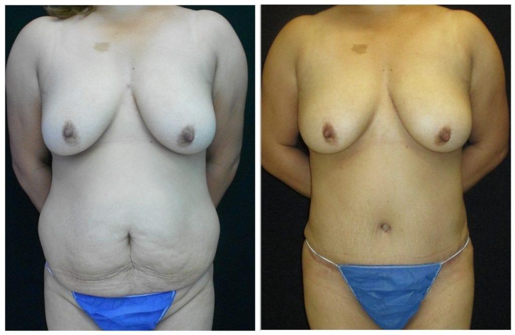14732a-tummy-tuck-abdominoplasty - Tummy Tuck - Before And After - Abdominoplasty - Fairfax and Manassas VA