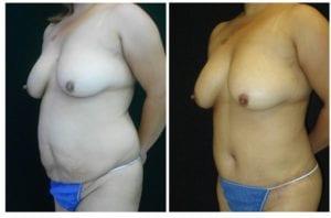 14732b-tummy-tuck-abdominoplasty - Tummy Tuck - Before And After - Abdominoplasty - Fairfax and Manassas VA
