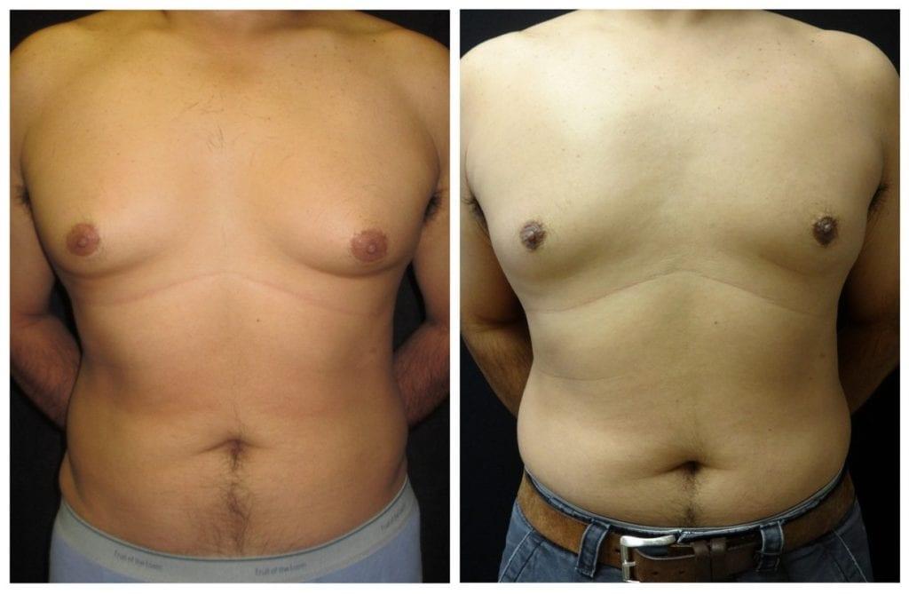 15264a-male-breast-reduction - Male Breast Reduction - Before And After - Gynecomastia - Fairfax and Manassas VA