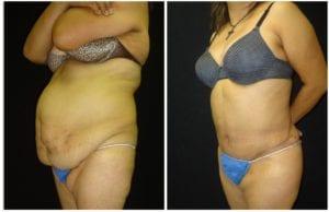 15266b-tummy-tuck-abdominoplasty - Tummy Tuck - Before And After - Abdominoplasty - Fairfax and Manassas VA