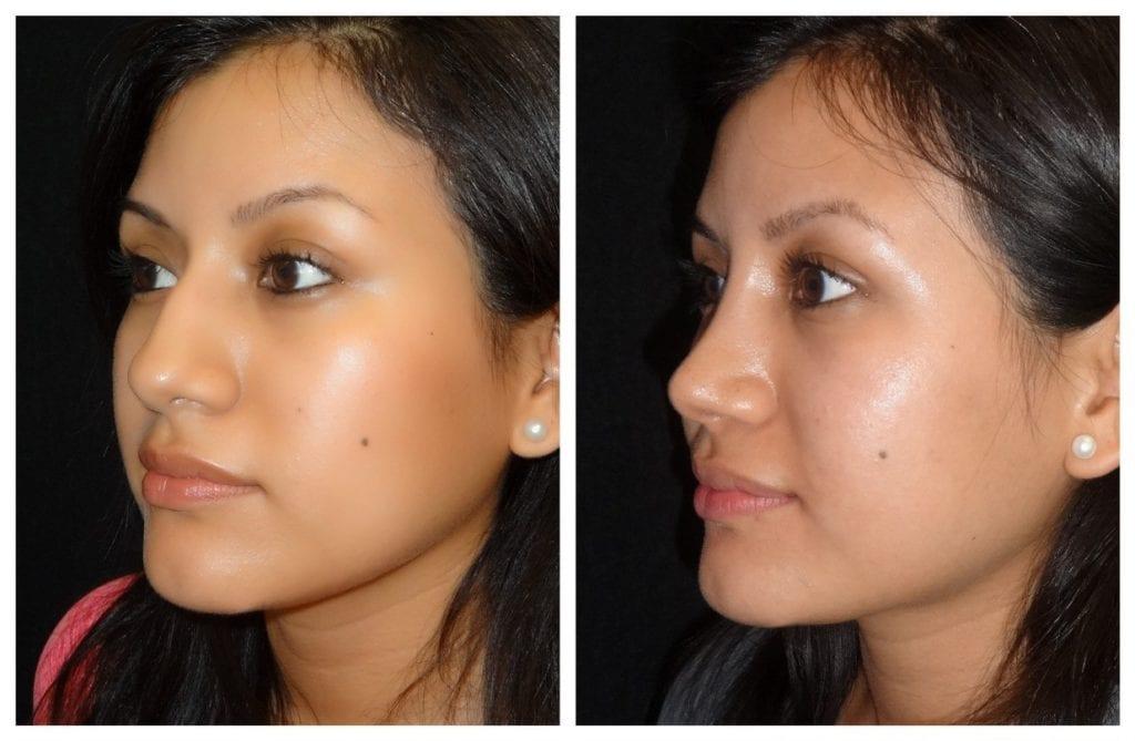 15347a-rhinoplasty-for-women - Rhinoplasty For Women - Before And After | Fairfax and Manassas VA