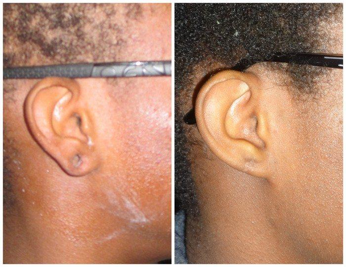 15735-torn-earlobe-repair - Torn Earlobe Repair - Before And After | Fairfax and Manassas VA