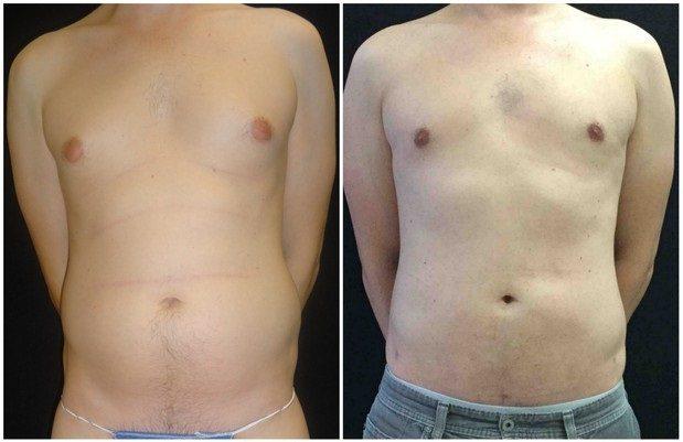 16009a-male-breast-reduction - Male Breast Reduction - Before And After - Gynecomastia - Fairfax and Manassas VA