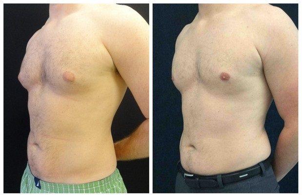 16357a-male-breast-reduction - Male Breast Reduction - Before And After - Gynecomastia - Fairfax and Manassas VA
