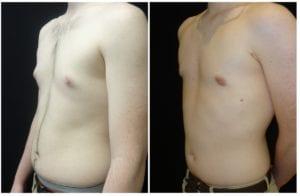16589b-male-breast-reduction - Male Breast Reduction - Before And After - Gynecomastia - Fairfax and Manassas VA