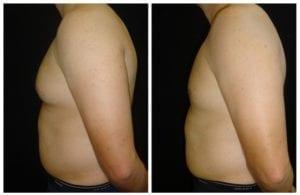 17156d-male-breast-reduction - Male Breast Reduction - Before And After - Gynecomastia - Fairfax and Manassas VA