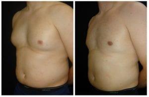 17516b-male-breast-reduction - Male Breast Reduction - Before And After - Gynecomastia - Fairfax and Manassas VA
