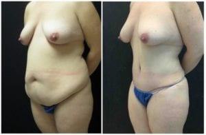 18605b-tummy-tuck-abdominoplasty - Tummy Tuck - Before And After - Abdominoplasty - Fairfax and Manassas VA