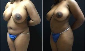 19146-45b-tummy-tuck-abdominoplasty - Tummy Tuck & Abdominoplasty - Before And After - Fairfax and Manassas VA