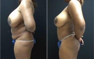 19146-90c-tummy-tuck-abdominoplasty - Tummy Tuck & Abdominoplasty - Before And After - Fairfax and Manassas VA