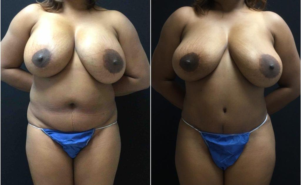 19146a-tummy-tuck-abdominoplasty - Tummy Tuck & Abdominoplasty - Before And After - Fairfax and Manassas VA