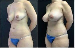 19182b56cf99b403073-tummy-tuck-abdominoplasty - Tummy Tuck & Abdominoplasty - Before And After - Fairfax and Manassas VA