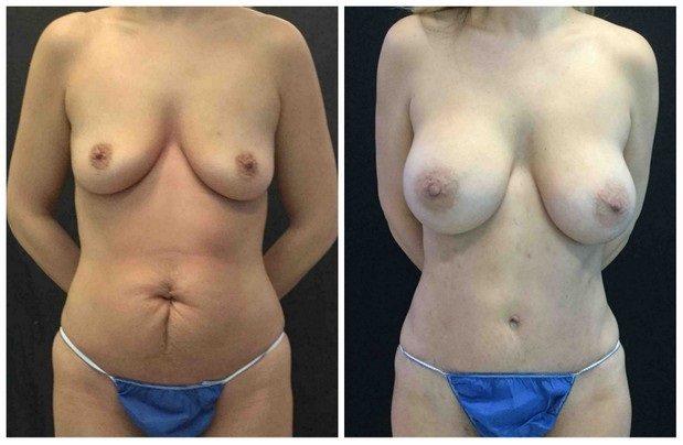 19389a56bd1f3cb1c84-tummy-tuck-abdominoplasty - Tummy Tuck & Abdominoplasty - Before And After - Fairfax and Manassas VA