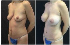 19389b56bd1f3cd015f-tummy-tuck-abdominoplasty - Tummy Tuck & Abdominoplasty - Before And After - Fairfax and Manassas VA