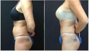 19404c-tummy-tuck-abdominoplasty - Tummy Tuck & Abdominoplasty - Before And After - Fairfax and Manassas VA