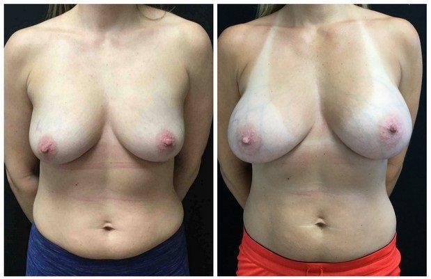 19632a57a3a2f14dfa4-breast-augmentation - Breast Augmentation Before And After - Fairfax and Manassas VA