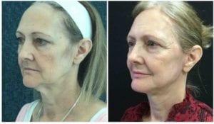 Luminous Lift - Before And After - Fairfax and Manassas VA