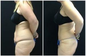 Tummy Tuck & Abdominoplasty - Before And After - Fairfax and Manassas VA
