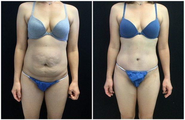 22384a-tummy-tuck-abdominoplasty - Tummy Tuck & Abdominoplasty - Before And After - Fairfax and Manassas VA