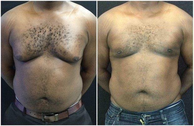 22547a-male-breast-reduction - Male Breast Reduction - Before And After - Gynecomastia - Fairfax and Manassas VA