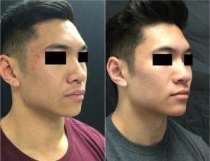 22858-20170331_90-Draw58deb85e8da9e-non-surgical-chin-augmentation - Non-Surgical Chin Augmentation - Before And After | Fairfax and Manassas VA