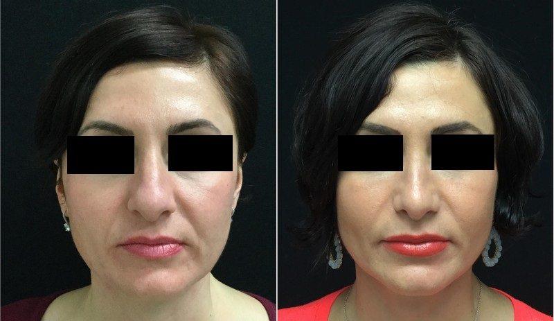 23588-rhinoplasty-for-women - Rhinoplasty For Women - Before And After | Fairfax and Manassas VA