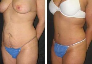 3311-side-tummy-tuck-abdominoplasty - Tummy Tuck & Abdominoplasty - Before And After - Fairfax and Manassas VA
