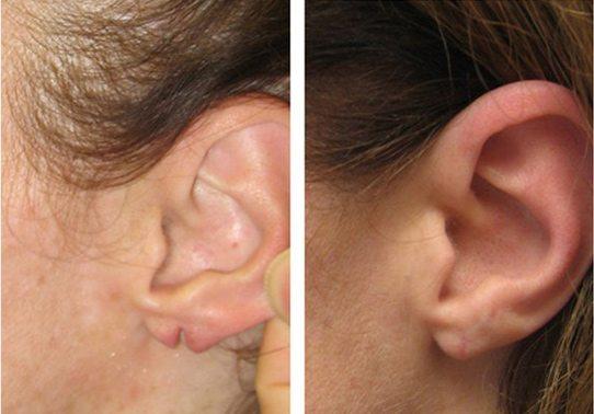 4-torn-earlobe-repair - Torn Earlobe Repair - Before And After | Fairfax and Manassas VA