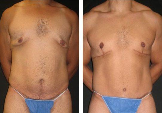 7926-ABDfront-tummy-tuck-abdominoplasty - Tummy Tuck - Before And After - Abdominoplasty - Fairfax and Manassas VA