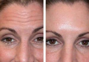 Botox - Before And After   Fairfax and Manassas VA