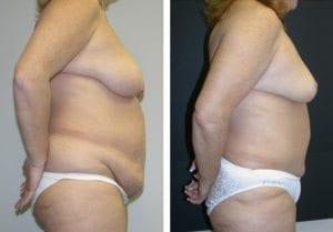 Patient-004b5271069ac8add-tummy-tuck-abdominoplasty - Tummy Tuck - Before And After - Abdominoplasty - Fairfax and Manassas VA