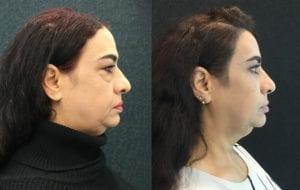 RIGHT24246-20170706_Crop-eyelid-lift-upper-and-lower - Upper and Lower Eyelid Lift - Before And After - Fairfax and Manassas VA