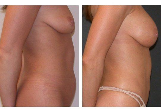 liposuction-New-3-liposuction - Liposuction - Before And After - Fairfax and Manassas VA