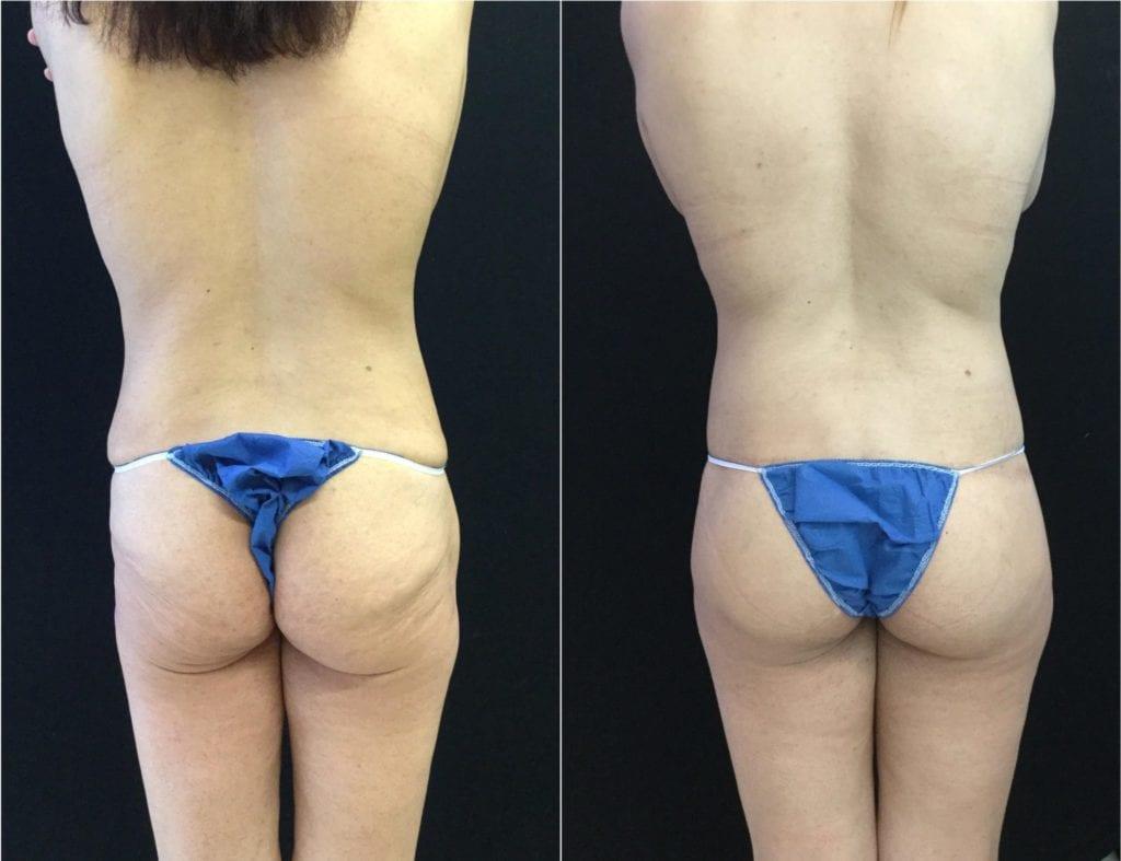 19513-20170515_Butt Lift Canvas - Buttock Lift Before and After | Fairfax and Manassas VA